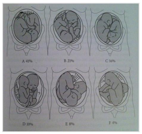 colocacion de los fetos en el vientre materno